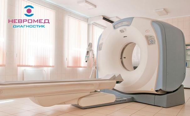 Скидка на МСКТ головы, позвоночника, суставов, костей и внутренних органов с записью снимков на диск, описанием и заключением врача в лечебно-диагностическом центре «Невромед-Диагностик». Скидка 50%